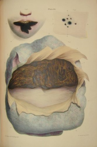 Robert Carswell: Pathological Anatomy, first edition